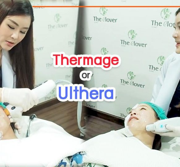 Thermage or Ulthera