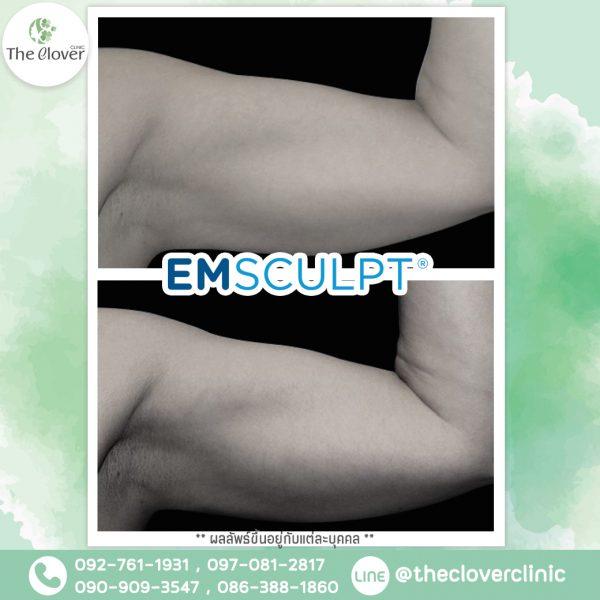 Emsculpt Reviews