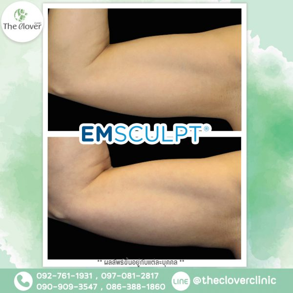 รูปหลังทำ Emsculpt บริเวณแขน